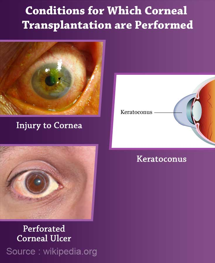 Conditions for which Corneal Transplantation is Performed