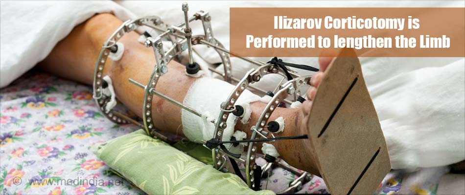 Ilizarov Corticotomy is Performed to Lengthen the Limb