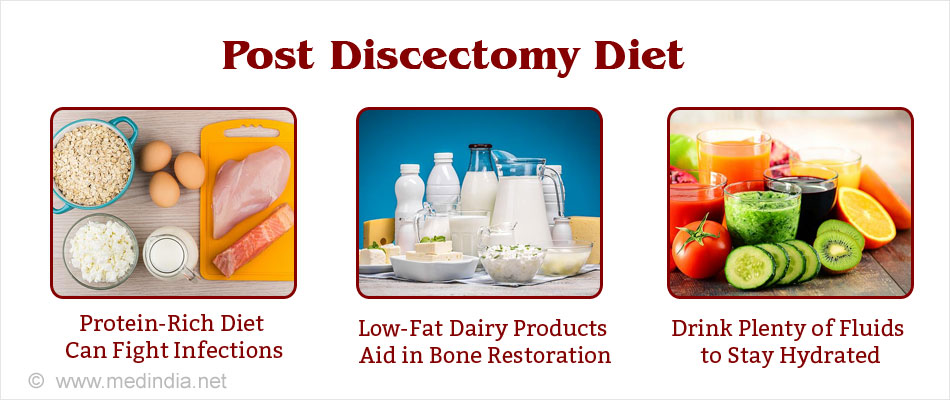 diet after discectomy - Microdiscectomy Recovery Time Frame