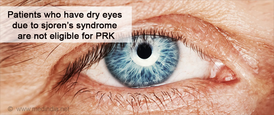 Patients Who Have Dry Eyes Due to Sjoren's Syndrome are Not Eligible for PRK
