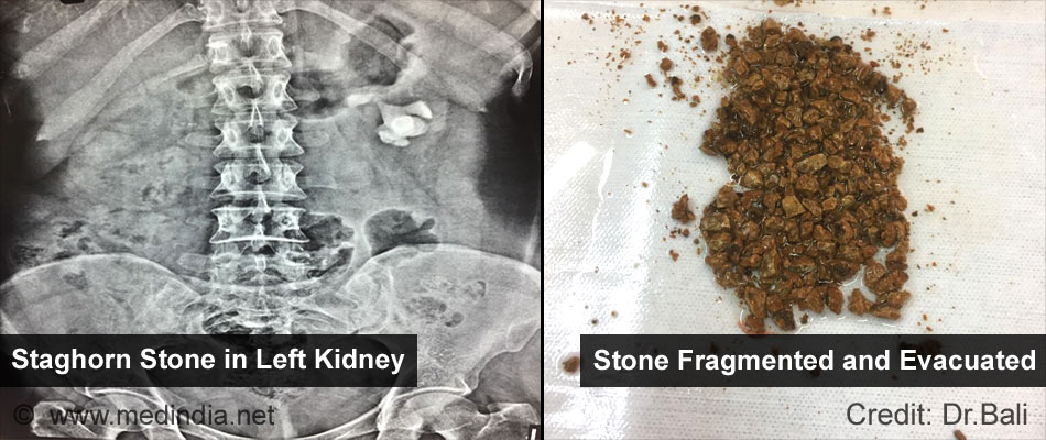 Staghorn Stone in Left Kidney