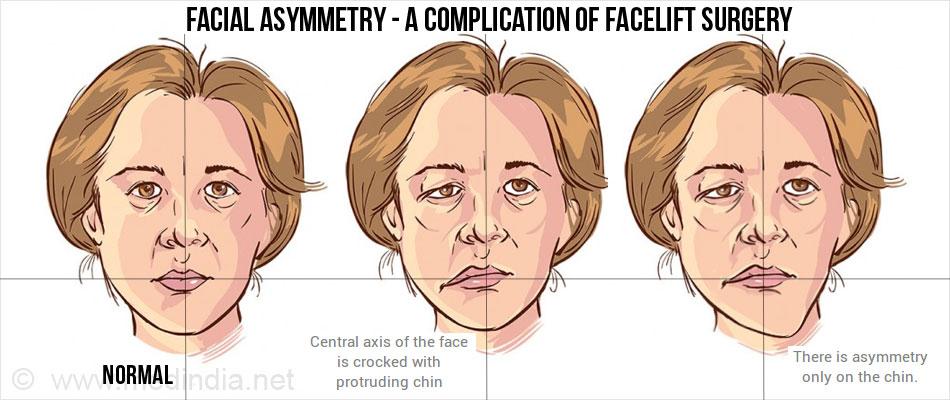 complications of facelift surgery facial asymmetry