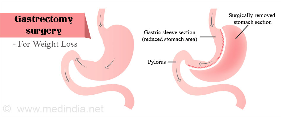 gastrectomy - surgical procedure, Skeleton