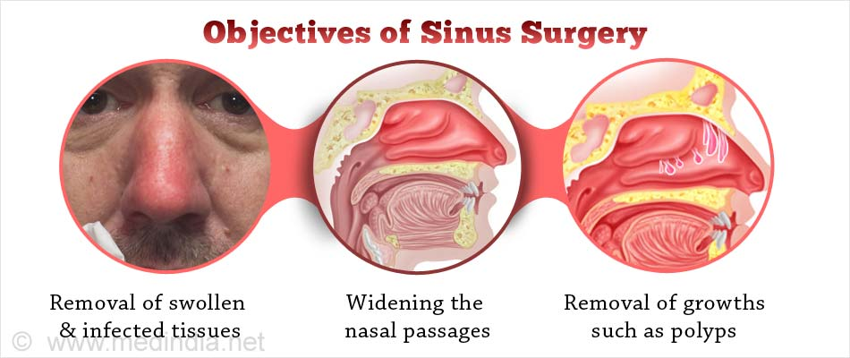 complications of endoscopic sinus surgery Endoscopic sinus surgery remains one of the most effective management options for patients with chronic sinusitis it offers symptomatic relief for 90% of patients and entails a low-risk .