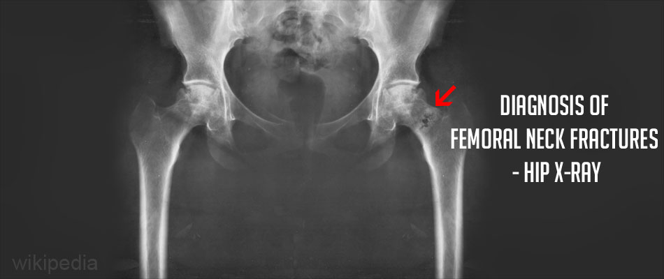 Diagnosis of a Femoral Neck Fracture - Hip X-ray