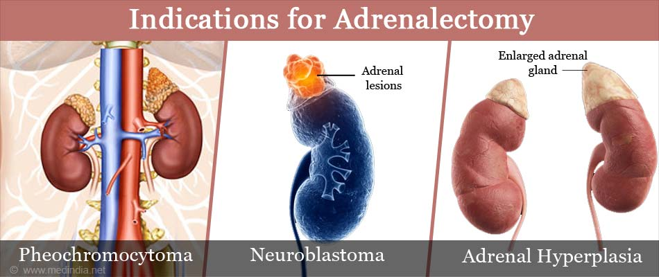 Indications for Adrenalectomy