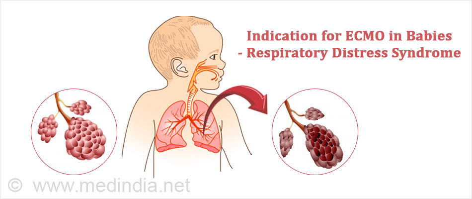 Indication for ECMO in Babies - Respiratory Distress Syndrome