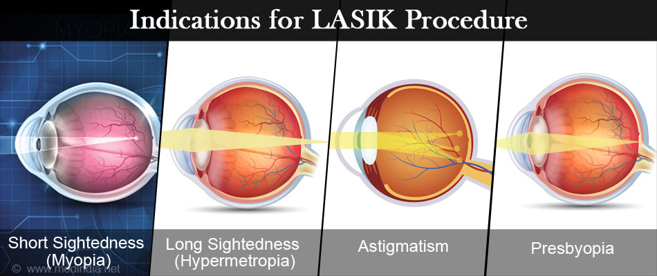 Indications for LASIK Procedure