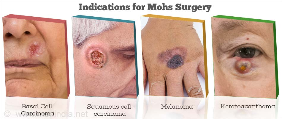 Indications for Mohs Surgery