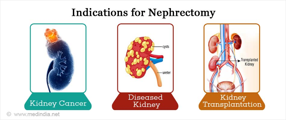 Indications for Nephrectomy