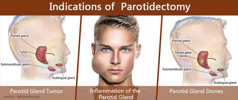 Indications of  Parotidectomy