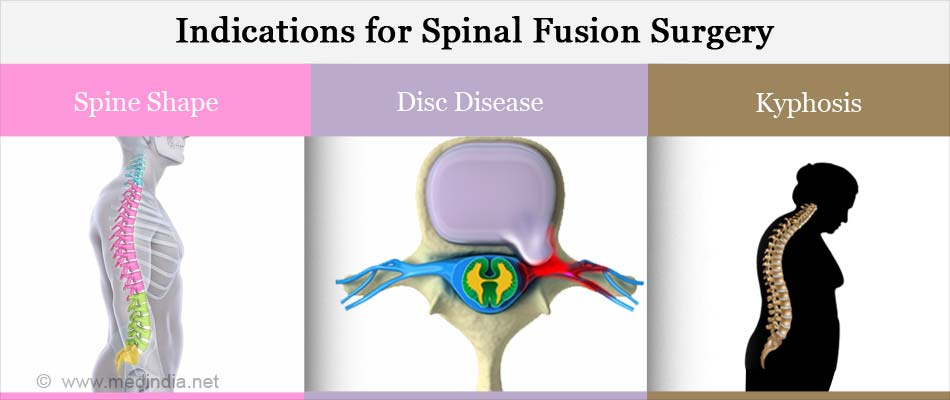 Indications for Spinal Fusion Surgery