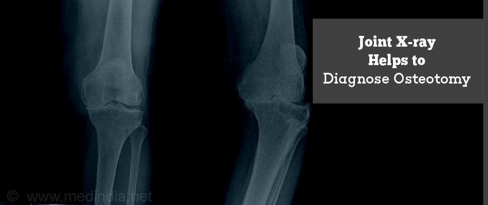 Joint X-ray Helps to Diagnose Osteotomy