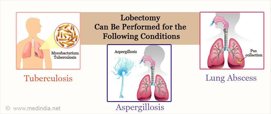 Lobectomy Can Be Performed for the Following Conditions