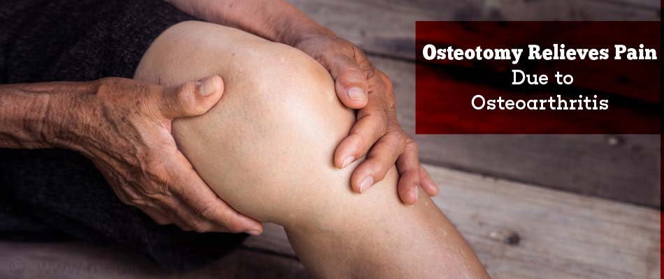 Osteotomy Relieves Pain Due to Osteoarthritis