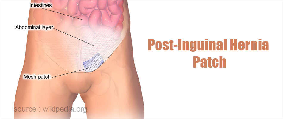 Post-Inguinal Hernia Patch