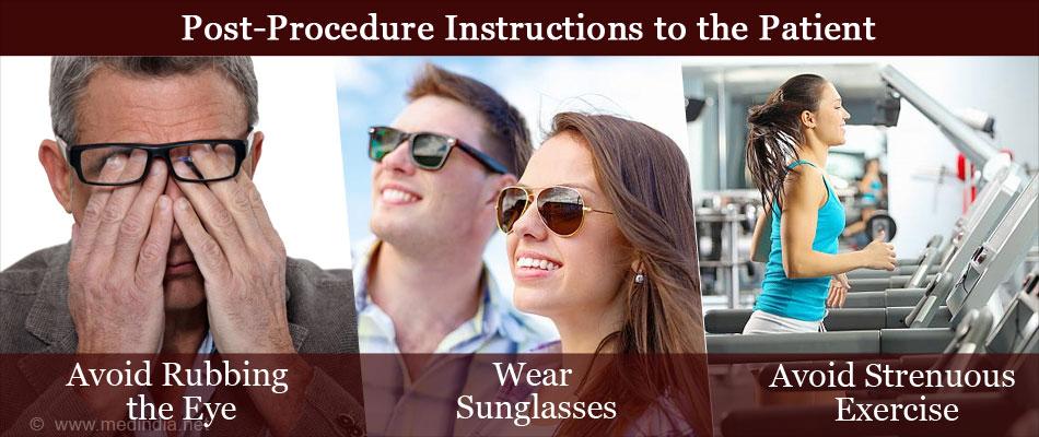 Photorefractive Keratectomy Prk Surgical Procedure