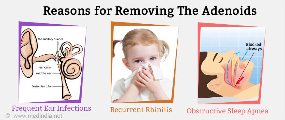 Reasons for Removing the Adenoids