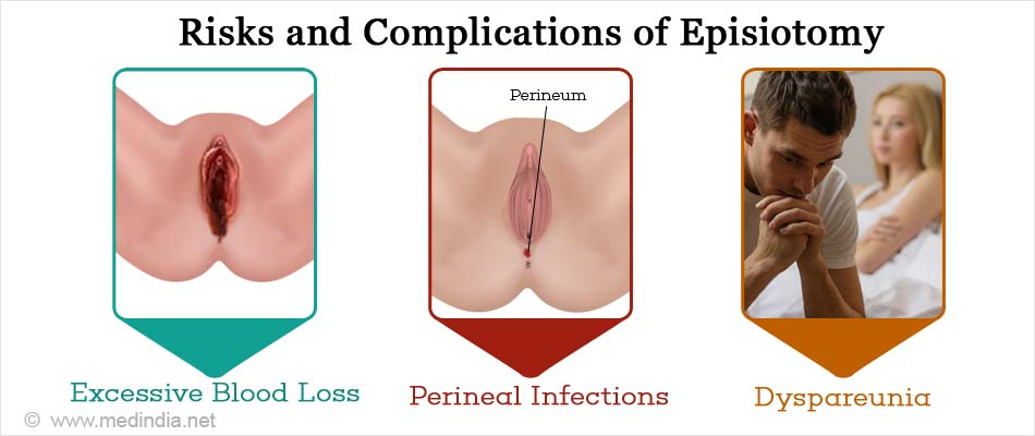 Risks and Complications of Episiotomy
