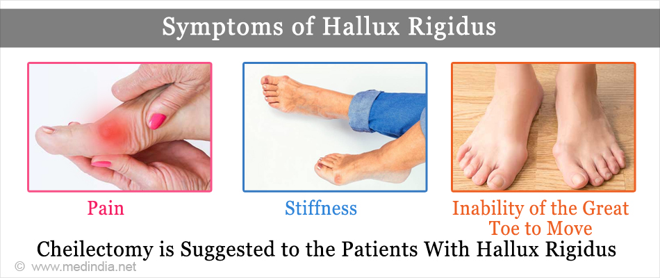 Symptoms of Hallux Rigidus