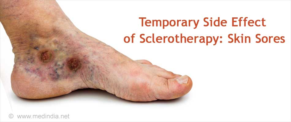 Temporary Side Effect of Sclerotherapy: Skin Sores