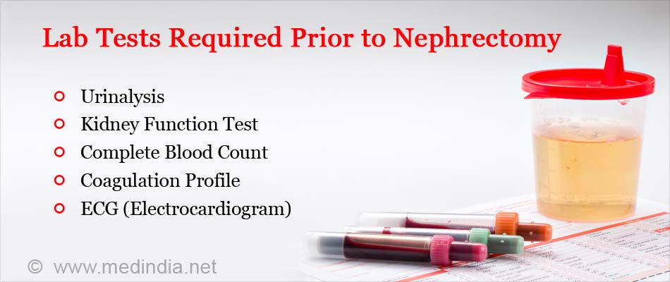 Tests Required Prior to Nephrectomy