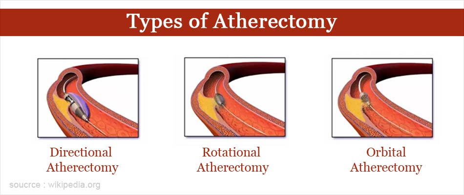 Types of Atherectomy