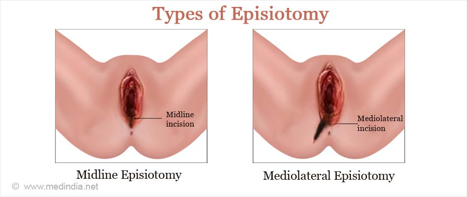 Types of Episiotomy