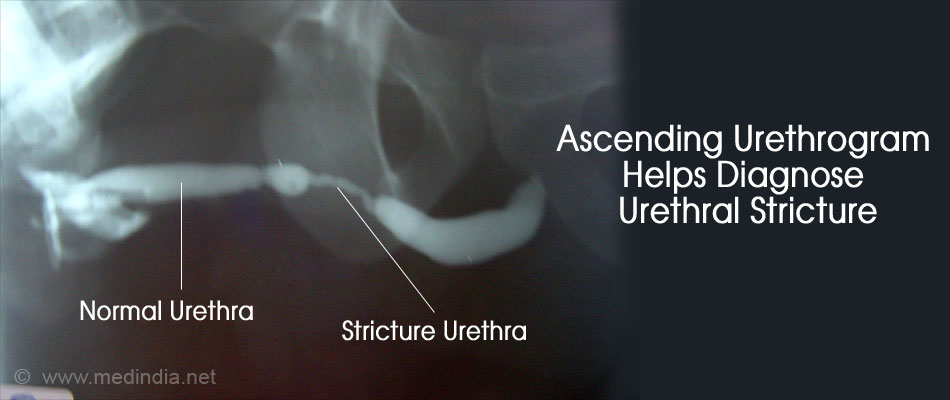 technique to facilitate treatment of urethral strictures Corrective treatment at mayo clinic is necessary only if your stricture  and  reconstructive surgical techniques to treat urethral stricture disease.