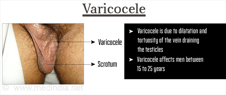 Varicocelectomy - Surgical Procedure