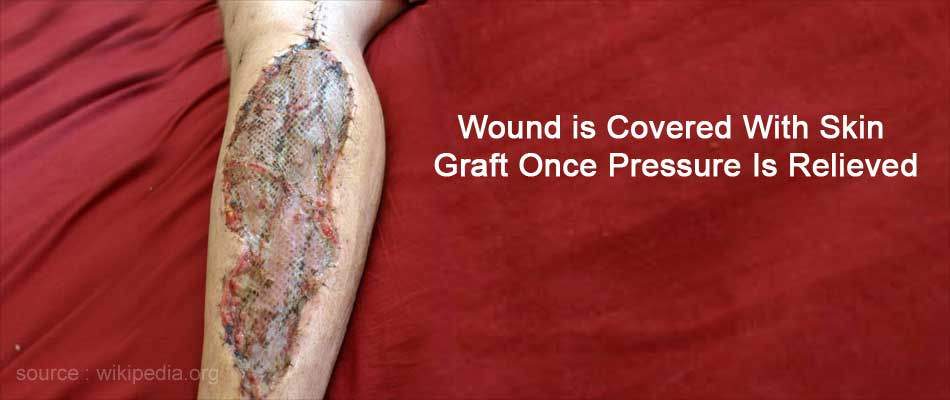 Wound is Covered With Skin Graft Once Pressure Is Relieved