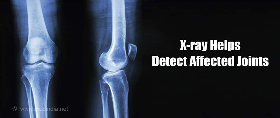 X-ray Helps Detect Affected Joints