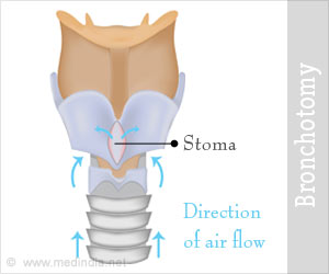 Bronchotomy ⁄ Surgical Airway Management