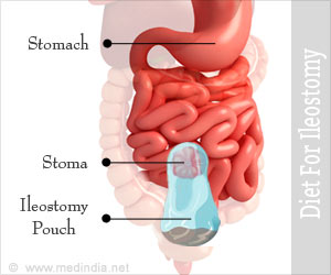 Ileostomy Diet - Foods to Eat and Foods to Avoid - Slide Show