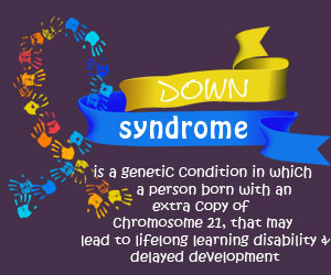 Down Syndrome - Infographic