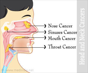Test Your Knowledge on Head and Neck Cancer