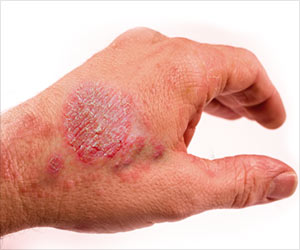 Eczema: Miracles with Homeopathy