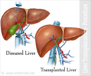 Liver Transplantation Part 1: Procedure & Techniques