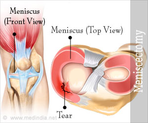 Meniscectomy