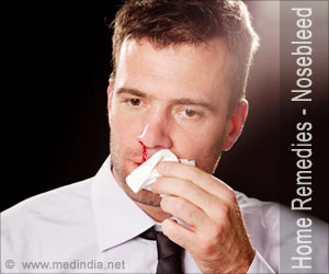 Home Remedies for Nosebleed
