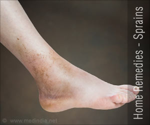 Home Remedies for Sprains
