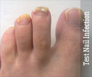 Test Your Knowledge on Nail Infection