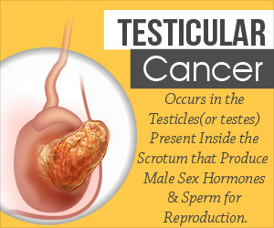 Testicular Cancer - Infographics