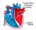 Balloon Atrial Septostomy - Conditions, Procedures, Modifications, Complications