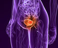 Bladder Cancer - Infographics