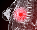 Breast Cancer / Carcinoma of the Breast