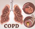 Chronic Obstructive Pulmonary Disease - Infographic