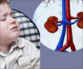 Anemia in Children with Chronic Kidney Disease - Complications