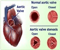 Aortic Valve Stenosis - Symptoms, Signs and Diagnosis of Aortic Valve Stenosis