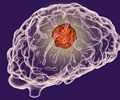 Brain Tumor - Risk Factors